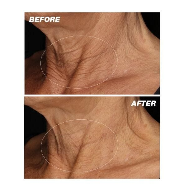 Neck Fit Contour Serum (free gift included)